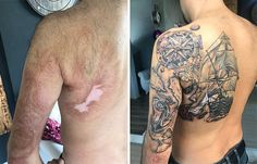 25 Times People Asked To Cover Up Their Scars And Birthmarks, And Tattoo Artists Nailed It - Scar-Birthmark-Tattoo-Cover-Ups - Birthmark Tattoo, Scar Tattoo, Scars Tattoo Cover Up, Scar Cover Up, Incredible Tattoos, Beautiful Tattoos, Clever Tattoos, Tattoo People, Beste Tattoo