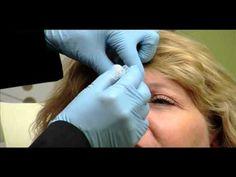 Botox Services at Yuma Beauty