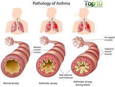 asthma-big-ft.jpg (750×570)
