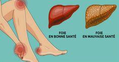 Découvrez les symptômes qui indiquent que vous avez un foie paresseux, ainsi que les recommandations pour le détoxifier naturellement...