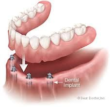 Dental implants!!! Get to know the implant world! Check our website too for more details!