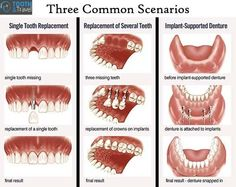 Dental Implants:3 common scenarios !!