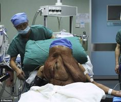 A Chinese man has undergone surgery to remove a 3.3lb (1.5kg) tumour from his face. Huang Chuncai, 37, from Hunan province, has been dubbed 'China's Elephant Man'. He suffers from an extreme case of neurofibromatosis, which has caused large tumours on his face that have completely distorted his features. He is said to have theworld's worst recorded case of the condition.