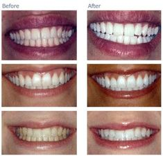 teeth whitening nyc