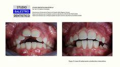 Casi clinici ortodontici - Terapia ortodontica intercettiva (12 mesi) Morso aperto dentale http://www.studiodentisticobalestro.com/2017/07/morso-aperto-anteriore.html