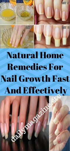 Natural Home Remedies for Nail Growth Fast and Effectively Loading. Natural Home Remedies for Nail Growth Fast and Effectively Nail Growth Faster, Nail Growth Tips, Nail Care Tips, Grow Nails Faster, Cold Home Remedies, Natural Home Remedies, Nail Growth Treatment, Sephora, Nail Oil