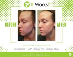 It Works Before and After Photos with the It Works Body Wraps, Facial Wraps, Weight Loss System, Hair Skin & Nails, and WOW to Wipe out Wrinkles in 45 seconds! It Works Facials, Facial Before And After, Lotion, It Works Body Wraps, Lose Water Weight, It Works Distributor, Exfoliating Peel, It Works Global, Skin Line