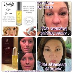 Uplift Eye Serum. It's so worth $65 and last about 6 months. You can also purchase the about face or all eyes on you collection that includes the eye serum. Try it for 14 days and see the difference.  Order from this party and help us raise $$$ for the March of Dimes.  www.youniqueproducts.com/patriciaAblack/party/1874771/view