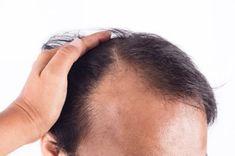 A jódhiány 7 vészjósló jele, amit soha nem szabad figyelmen kívül hagyni Hair Loss Cure, Hair Loss Remedies, Hair Growth Oil, Natural Hair Growth, Temple Hair Loss, Best Hair Conditioner, Excessive Hair Loss, Hair Restoration, Hair Loss Treatment