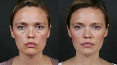 Facial Yoga Workouts For Attaining A Perfect Facelift Without Surgery: Tidy Your Eyes With Facial Rejuvenation Workout Re. Natural Facial, Natural Healing, Beauty Make Up, Hair Beauty, Beauty Secrets, Beauty Hacks, Facelift Without Surgery, Facial Yoga, Face Exercises