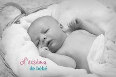 eczéma-bébé