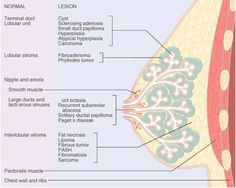 medicalthingy:    Normal breast anatomy and anatomical location of common breast lesions.  —Robbins Pathologic Basis Of Disease 7ed