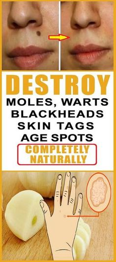 People experience certain skin issues like moles, skin tags, clogged pores or skin breakouts in some period of their lives. They are all caused by some hormonal imbalance or changes in your lifestyle.