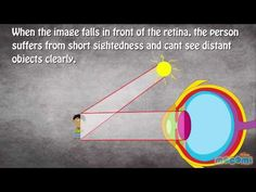Video : How does the eye work?