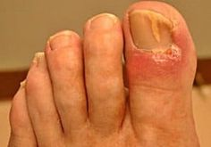 Watch This Video Mind Blowing Home Remedies for Toenail Fungus that Really Work Ideas. Astonishing Home Remedies for Toenail Fungus that Really Work Ideas. Toenail Fungus Remedies, Toenail Fungus Treatment, Home Treatment, Nail Treatment, Laser Eye Surgery Cost, Toe Fungus, Fungus Toenails, Brittle Nails, Mushrooms