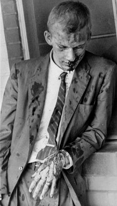 American pacifist James Zwerg after being beaten by a mob in Montgomery, Alabama in 1960 as part of the Freedom Riders. Zwerg volunteered to leave the bus first upon arriving in Montgomery, knowing he'd be the blunt of the violent crowd's aggression. He would have died that day if an anonymous black man hadn't stepped in and saved his life by deflecting the mob's attention to himself.