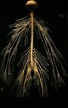 You live your whole life through your nervous system! A healthy spine and nerve system equals a healthier and better life. Omaha Nebraska Chiropractors | Millard Oaks Chiropractic 402-905-0132