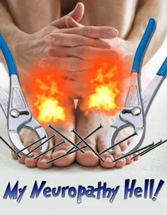 Neuropathy is HELL. Drug Free Pain Relief @neuro pathy and Pain Centers of America Neuropathy and Pain Centers of America http://nvneuropathy.com/index.html  Like us:https://www.facebook.com/NeuropathyPainCenterofAmerica