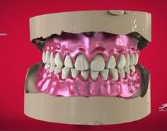 print model Digital Full Dentures with Manufacturing Fused Deposition Modeling, 3d Printing Materials, 3d Printable Models, Modeling Techniques, 3d Printing Service, 3d Printing Technology, Design Process, Printing Process, 3d Printer