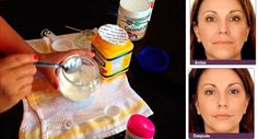It Tightens The Skin Better Than Botox: This 3 Ingredients Face Mask Will Make You Look 10 Years Younger - Healthy Living Team Diy Beauty, Beauty Skin, Health And Beauty, Beauty Hacks, Home Remedies, Natural Remedies, Herbal Remedies, Cough Remedies, Lotion Tonique