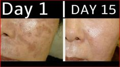 15 days, 2 minutes | All Dark Spots, Black Spots, Acne Scars & Blemishes will disappear from your face !!