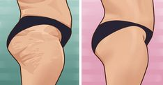 Ways to reduce the appearance of cellulite (VIDEO)