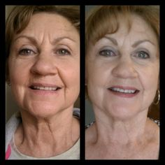 More Real Results with NeriumAD!  I see Nerium's real anti aging skincare results in all-over improvements, but neck improvements are striking!  Buy your Nerium & learn more at http://nancyacomee.nerium.com/