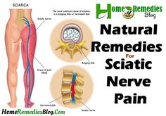 """When sciatic nerve is irritated or fall under compression then sciatic pain occur. Most widely name used for this medical condition is """"sciatic nerve pain"""" or """"sciatica pain"""". Some people can have this waist issue in early age and some in old age. In general, the pain occurs only one side and can be very …"""