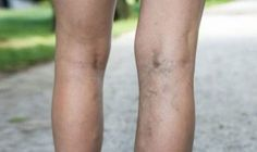 We can quickly identify varicose veins with a darker tone in our skin, and blue. In this article, you can find useful home remedies for varicose veins. Benefits Of Witch Hazel, Witch Hazel Uses, Varicose Vein Remedy, Varicose Veins Treatment, Home Remedies, Legs, Natural Treatments, Natural Home Remedies