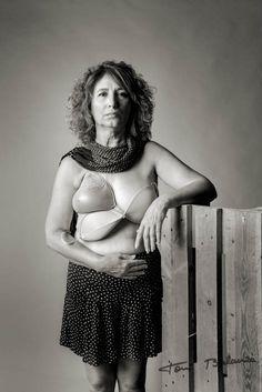Marisa mujer mastectomizada por el cáncer de mama una fotografía de Toni Balanzà