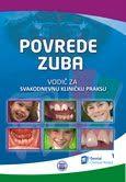 povrede-zuba
