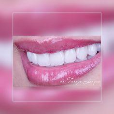 Best Dentist, Dental Implants, Tourism, Lipstick, Hollywood, Smile, Good Things, Dental Veneers, Tooth Bleaching