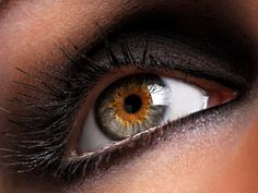 I think this is central heterochromia