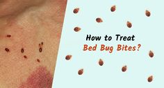 How to Treat Bed Bug Bites?