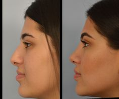Rhinoplasty Los Angeles and best nose surgery options by Dr. Caucasian, ethnic rhinoplasty and closed (scarless) rhinoplasty specialist. Nose Plastic Surgery, Nose Surgery, Celebrity Plastic Surgery, Pretty Nose, Rhinoplasty Surgery, Straight Nose, Small Nose, Face Profile, Nose Shapes