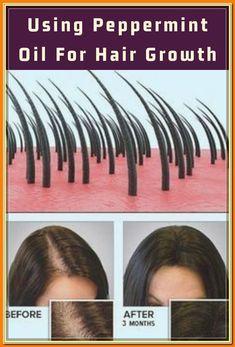 Hair Thickening Remedies, Thinning Hair Remedies, Hair Loss Remedies, Hair Loss Cure, Oil For Hair Loss, Stop Hair Loss, Hair Fall Remedy, Home Remedies For Hair, Peppermint Oil Hair Growth