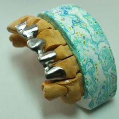 Modelos personalizados para prótesis fija
