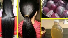 Hair thinning is frequent nowadays but also hair is often the resource that makes all of us appear pretty and healthful. So thinned out and scarce hai. Physical Stress, Bald Hair, Personal Hygiene, Skin Problems, Hair Loss, How To Look Pretty, Beauty Skin, Hair Care, Hair Growth