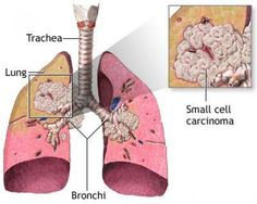 Squamous cell carcinoma of the lungs accounts for 30 percent of lung cancers. What are the symptoms, treatments, and prognosis for this kind of lung cancer? Small Cell Carcinoma, Squamous Cell Carcinoma, Lung Cancer Treatment, Medical Surgical Nursing, Oncology Nursing, Nursing Diagnosis, Lunges, Metabolism, The Cure