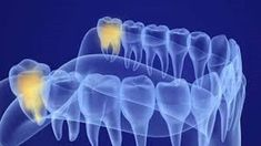Wisdom Teeth Extraction - URBN Dental offers painless Wisdom Teeth Extraction in Houston TX. Wisdom teeth pain? Book an emergency appointment today! Be seen the same day! Impacted Wisdom Teeth, High Calorie Diet, Dentist Near Me, Wisdom Teeth Removal, Dentist Appointment, Tooth Pain, Teeth Cleaning, Houston Tx