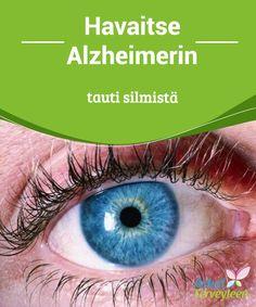 Havaitse Alzheimerin tauti silmistä  #Viimeaikaiset Yhdysvalloissa ja Kiinassa tehdyt #tutkimukset ovat osoittaneet, että on mahdollista havaita #Alzheimerin tauti silmistä.  #Mielenkiintoista tietoa