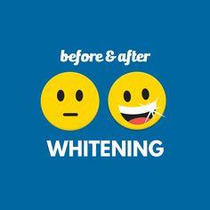 ¿Te interesa un blanqueamiento dental? Sólo llámanos y nos encargamos de devolverle el brillo a tu sonrisa.