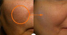No todas las tipos de piel son iguales, algunas personas tenemos los poros de la cara muy dilatados. Esto puede confundirse con marcas dejadas por el acné y en muchos casos con signos de vejes. Anuncio En el mercado de los cosméticos podemos encontrar un sin numero de productos que aseguran cerrar nuestros poros de… Read More »