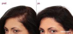 Vďaka schopnosti dokonale, rýchlo a jednoducho premeniť riedke vlasy na husté, sú Nanogen Keratínové Vlákna najvyhľadávanejším zahusťovačom vlasov na svete!