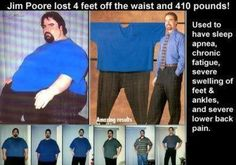 Jim Poore holds Guiness' World Record for Natural Weight Loss of 402 lbs.