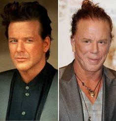 Mickey Rourke Plastic Surgery : The Evolution Of Mickey Rourke Before And After Plastic Surgery. The evolution of mickey rourke before and after plastic surgery. Botched Plastic Surgery, Bad Plastic Surgeries, Plastic Surgery Before After, Plastic Surgery Gone Wrong, Celebrity Plastic Surgery, Celebrities Before And After, Celebrities Then And Now, Rhinoplasty Before And After, Beauty