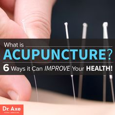 What is Acupuncture and 6 ways it can improve your health http://www.draxe.com #health #holistic #natural