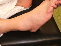 Swollen ankles feet and legs referred to medically as edema occur when fluid Foot And Ankle Swelling, Ganglion Cyst Wrist, Ovarian Cyst, Pitting Edema, Bunion Surgery, Toenail Fungus Remedies, Swollen Ankles, Foot Remedies, Legs