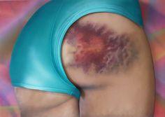 Roller Derby Kisses – Quand les bleus sur les cuisses deviennent des oeuvres d'art