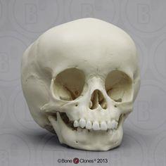 15-month-old Human Child Skull BC-111
